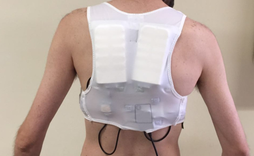 Defibrillatore indossato dal paziente dell'Utic Cardiologia dell'Ospedale di Chieti