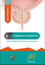 La radioterapia nel tumore della prostata