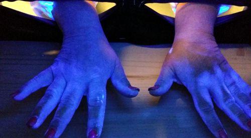 Lampada ultravioletti